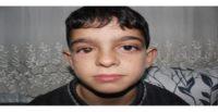 Suriyeli Mahmut protez gözüne kavuştu